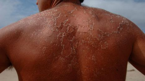 Cancer de la peau - Une cure grace au  virus de l'herpès