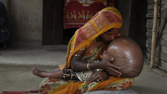 Roona, 18 mois, dans les bras de sa mère, dans leur village de l'Etat de Tripura, en Inde, le 13 avril 2013.