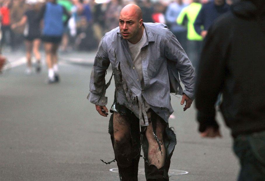 Un homme blessé par l'explosion.