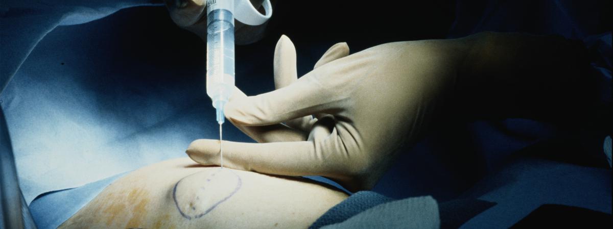 L'ablation du sein, bouclier efficace contre le cancer ?