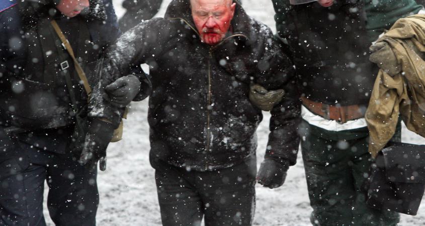 ukrainian loi Amateur