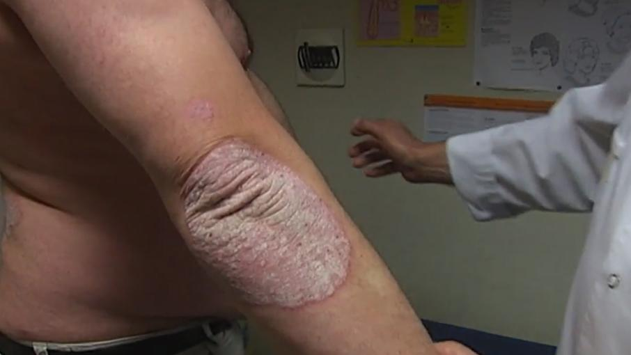 Atopitchesky la dermatite 1.5 an