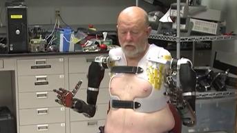 VIDEO. Des bras bioniques : une formidable avancée