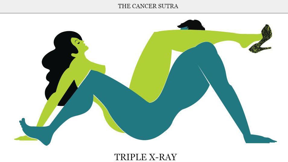 Sexe pour le cancer
