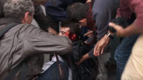 """Loi Travail : la """"police des polices"""" ouvre une enquête après la blessure grave d'un homme dans une manifestation"""