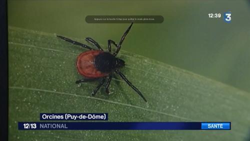 Santé : alerte aux tiques qui transmettent la maladie de Lyme