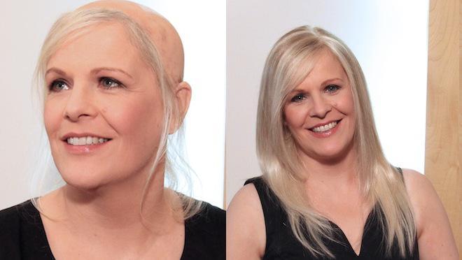 Chute de cheveux : la dermofusion pour une nouvelle chevelure
