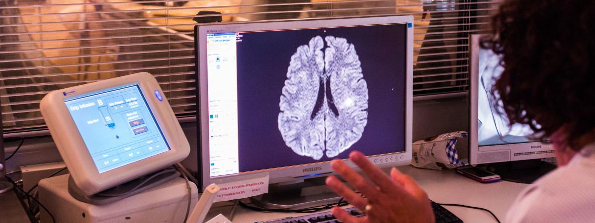 Un scanner cérébral, au CHU de Bordeaux, en 2014.