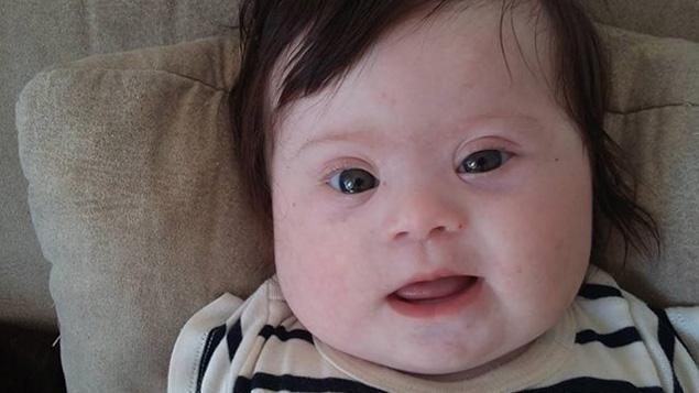 Trisomie 21 : le témoignage d'une maman française émeut la planète