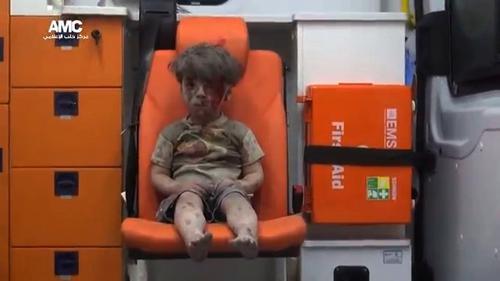 """Syrie : après la vidéo du petit Omran, un photographe raconte """"la routine"""" des enfants blessés et morts"""