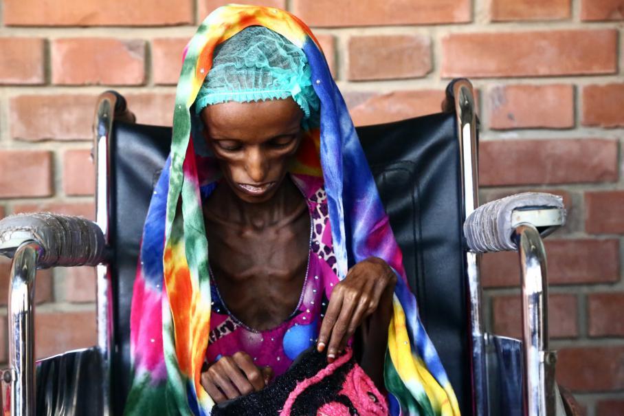 Saïda Ahmad Baghili, 18 ans, est assise sur une chaise roulante dans un hôpital à Hodeïda au Yémen, où elle était soignée pour malnutrition sévère, le 25 octobre 2016.