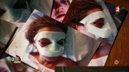 """VIDEO. """"13h15"""". Maëlle a été rouée de coups par son amoureux : 36 fractures au visage !"""
