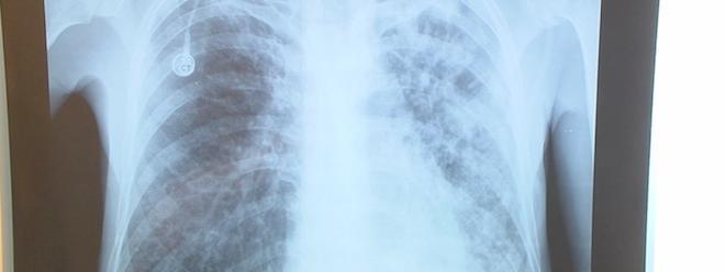 Tuberculose : une campagne de dépistage élargie dans la Vienne
