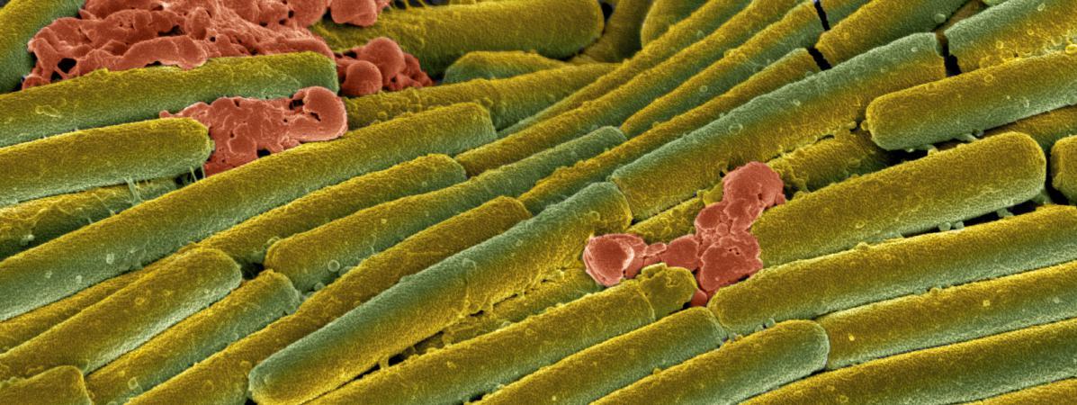 En vert, la bactérieClostridium difficile, vue au microscope électronique, le 15 février 2011.