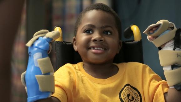 Zion Harvey pose après ses greffes de main après la lourde opération de juillet 2015