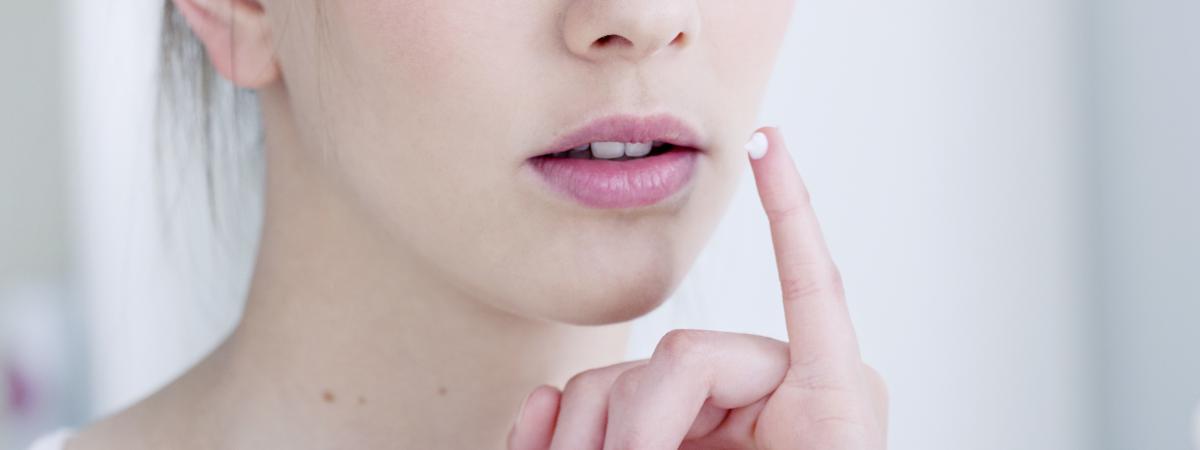 Pommade Homéoplasmine : quatre utilisations qui font débat