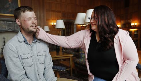 VIDEO. Etats-Unis : une femme rencontre l'homme qui a reçu le visage transplanté de son mari