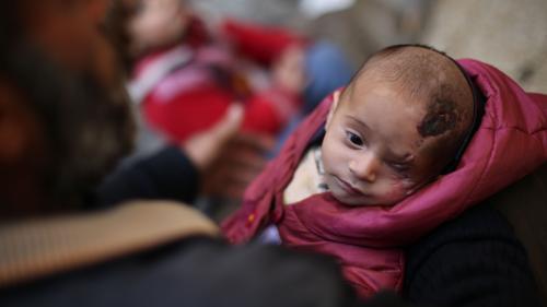 Karim, bébé devenu borgne après un raid, nouveau symbole des atrocités de la guerre en Syrie
