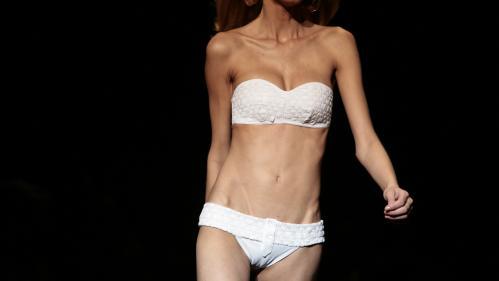 """""""Je n'ai plus qu'à me raboter les os des hanches"""" : une mannequin pousse un coup de gueule contre une agence française"""