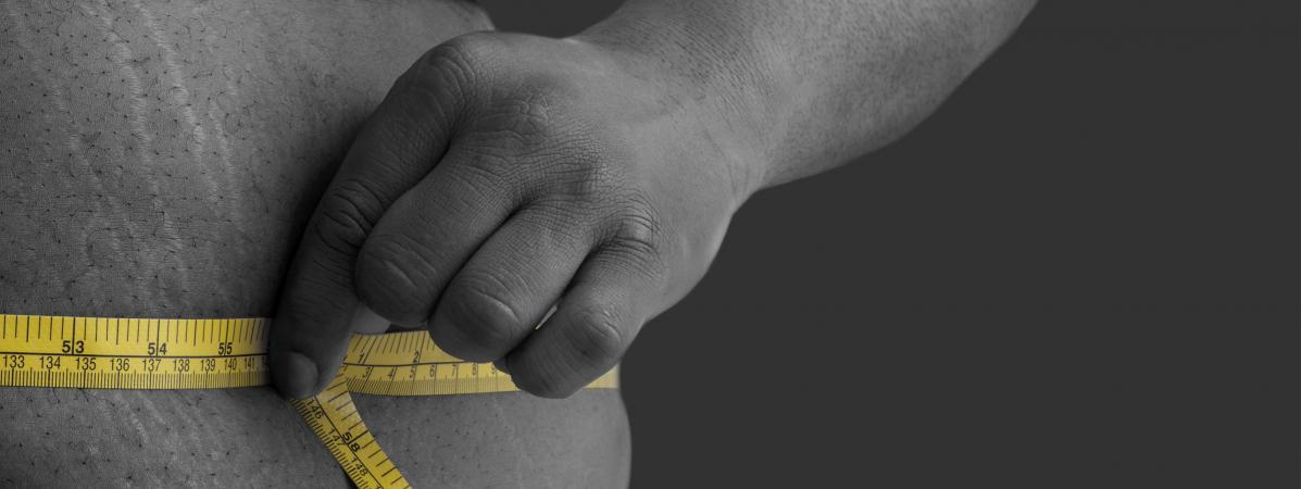 """""""Ce n'est pas un long fleuve tranquille"""" : des patients racontent leurs difficultés après une chirurgie de l'obésité"""