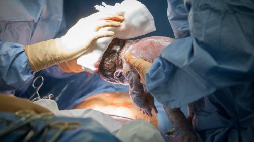 """Les gynécologues mettent en garde contre une """"épidémie de césariennes"""" dans le monde"""