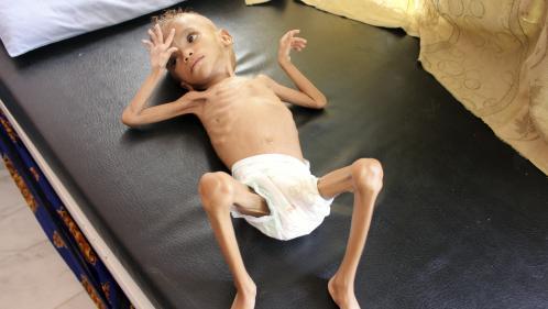 """Le """"New York Times"""" publie des photos d'enfants mourant de faim au Yémen, Facebook les censure temporairement"""