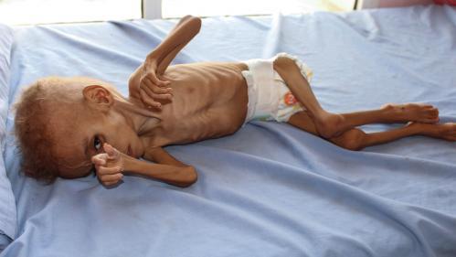 """Yémen : """"Un enfant meurt toutes les dix minutes"""", alerte l'Unicef"""