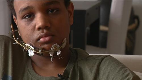 """""""Qu'on arrête de dire que je suis un casseur"""" : l'adolescent blessé lors d'une manifestation de """"gilets jaunes"""" à Strasbourg témoigne"""