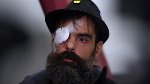 """""""Gilets jaunes"""" : ce que l'on sait de la blessure à l'œil de Jérôme Rodrigues pendant la manifestation de samedi"""