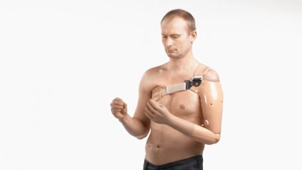 Nantes : elle va bénéficier d'un bras bionique