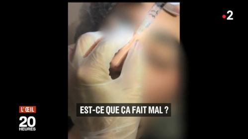 ENQUÊTE FRANCE 2. Ces faux médecins qui refont les lèvres ou les seins dans leur appartement
