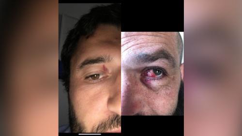 Occitanie : 10 blessés pendant un match de rugby, le président du club veut porter plainte contre l'adversaire