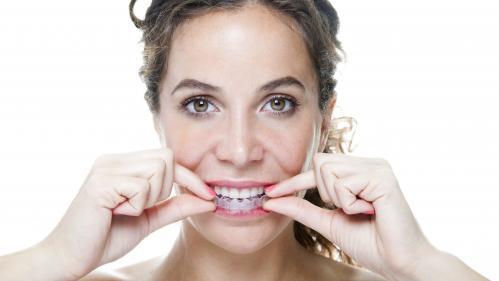 """Gouttière dentaire sans avis médical : """"On ne peut pas déplacer des dents comme on change de couleur de cheveux"""""""