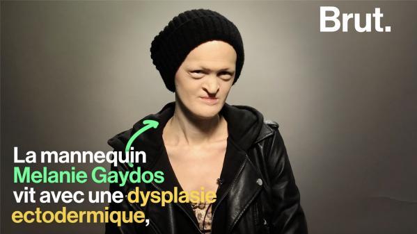 """VIDEO. """"Personne ne naît parfait"""" : Melanie Gaydos, une mannequin au physique atypique"""