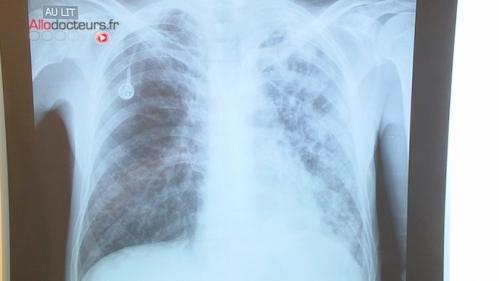 Silice : un risque élevé de maladies pulmonaires pour des milliers de travailleurs