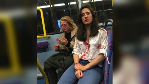 Agression lesbophobe à Londres : les suspects, âgés de 15 à 18 ans, libérés sous caution