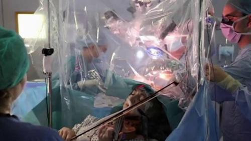 Royaume-Uni : une violoniste joue durant son opération du cerveau