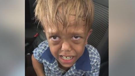 Australie : stars et anonymes se mobilisent pour Quaden, un garçon de 9 ans victime de harcèlement en raison de son handicap