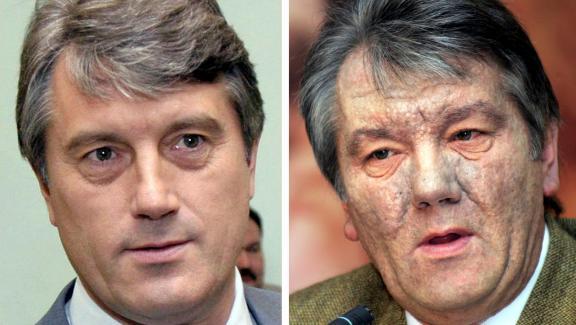 Le visage de Viktor Iouchtchenko, avant et après son empoisonnement à la dioxine.