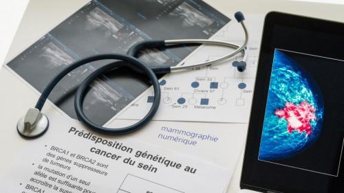 """Cancer du sein : un nouveau traitement disponible en France pour """"gagner des mois de vie"""""""