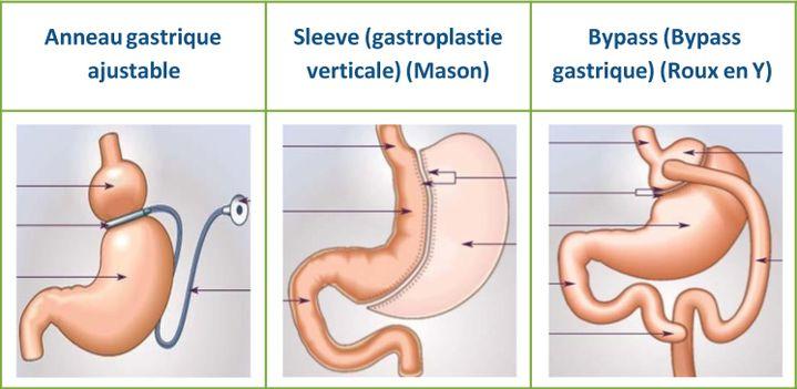 Schéma de trois opérations possibles sur l'estomac pour réduire la quantité d'aliments ingérés. (CNAM / décembre 2017)