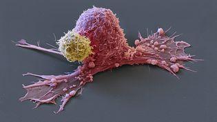 Une cellule cancéreuse attaquée par une cellule saine. (MAXPPP)