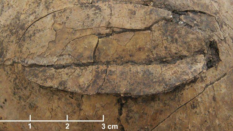 """Crâne fracturé d'un enfant de 3-5 ans, faisant partie du charnier préhistorique découvert en 2006 en Allemagne, sur le site dit de """"Stone Age"""", àSchöneck-Kilianstädten.  (Christian Meyer/AP/SIPA)"""