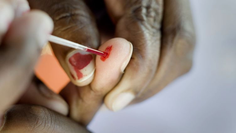 Un test HIV dans la région du Cap (RODGER BOSCH / AFP)