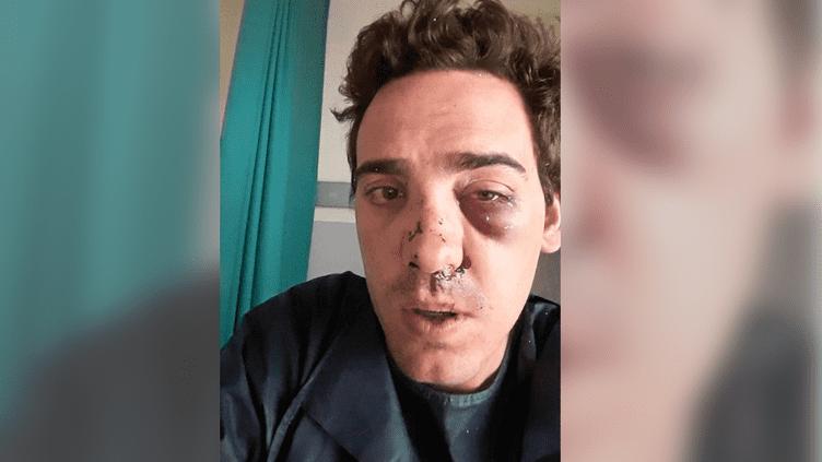 Une photo rendue publique via Facebookle 22 juin 2015 par Alexandre Berlin, un client d'UberPop qui affirme avoir été violemment agressé à Lyon par des chauffeurs de taxi, dans la nuit du 20 au 21 juin. (ALEXANDRE BERLIN / FACEBOOK)