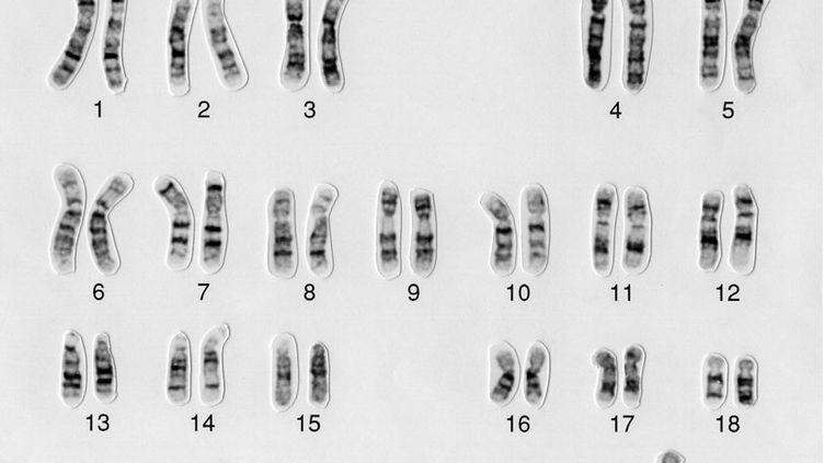 Vue partielle du caryotype d'un homme de 47 ans atteint de trisomie 21. (WESSEX REG. GENETICS CENTRE / WELLCOME IMAGES)