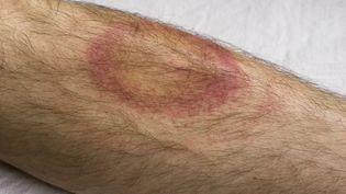 Un érythème migrant apparu après la morsure d'une tique porteuse de la bactérie borrélie. (HEIKE KAMPE / GETTY IMAGES)