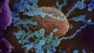 Virus sars-cov-2 vu au microscope électronique. Photo d'illustration. (HANDOUT / NATIONAL INSTITUTES OF HEALTH)
