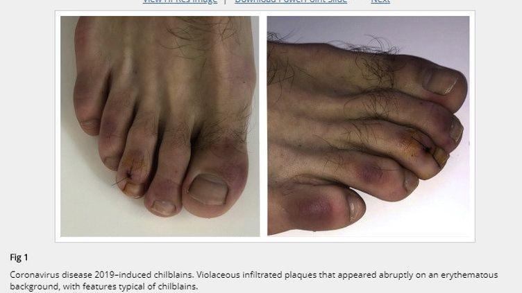 """Images d'un patient atteint de """"l'orteil Covid"""" (JOURNAL DE L'ACADEMIE AMERICAINE DE DERMATOLOGIE)"""