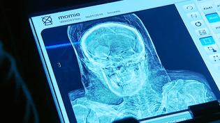 Image d'une momie aux rayons X  (France 3 Culturebox capture d'écran)